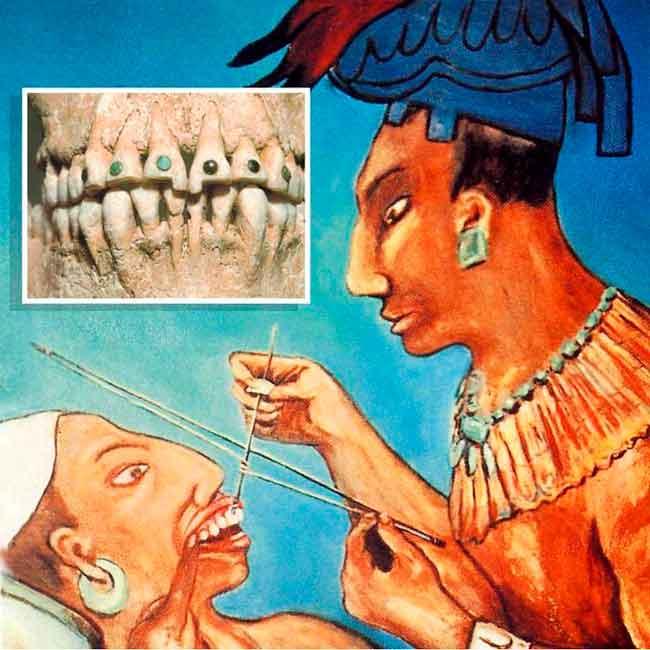 10 потрясных фактов из истории стоматологии