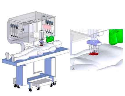 3D биопринтеры заживляют раны клетками кожи самого пациента